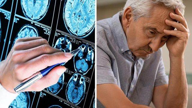 Revolucion në mjekësi/ Shkencëtarët zbulojnë shkakun e Alzheimer